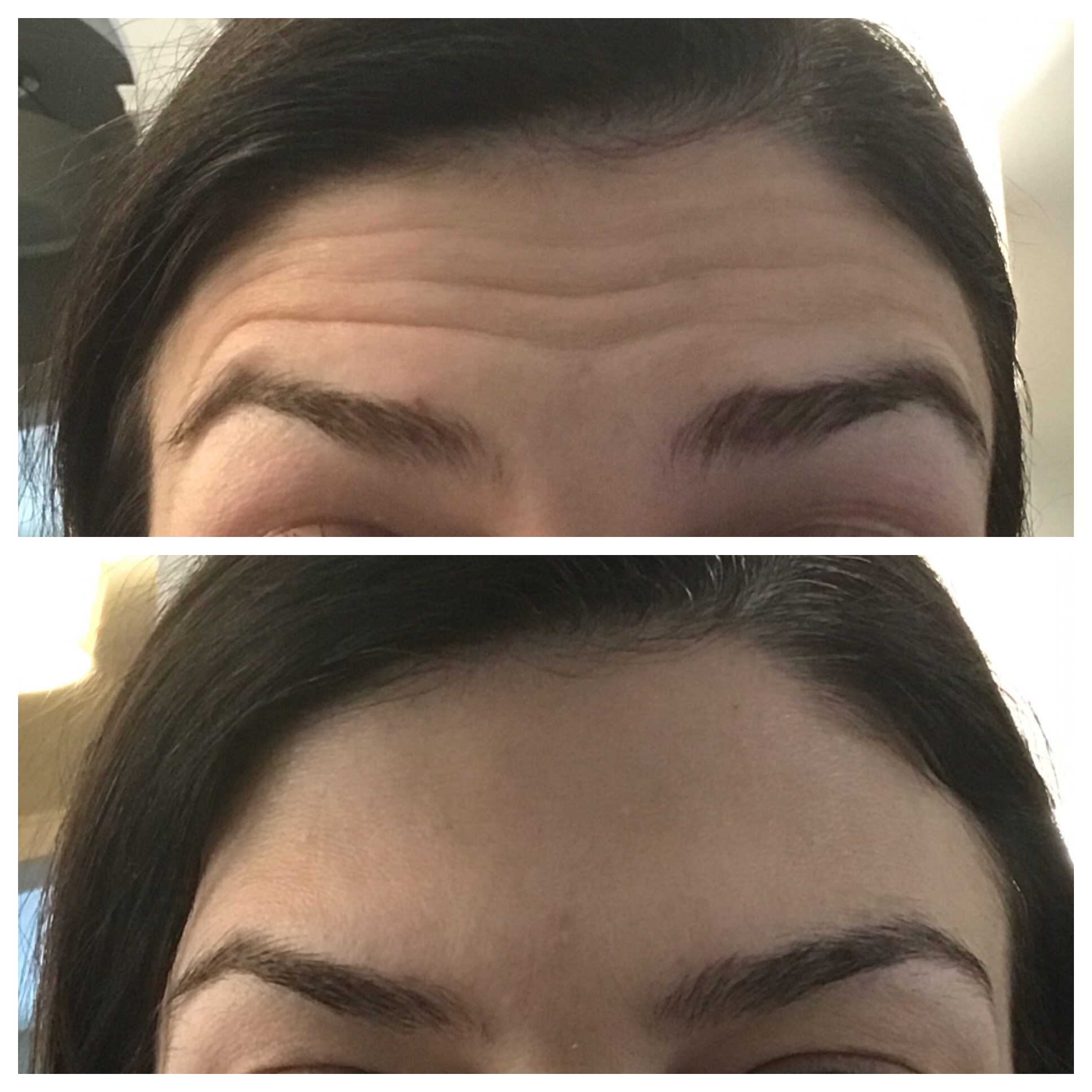 Botox at Tondue Medical Spa featured by top US life and style blog, The HSS Feed.