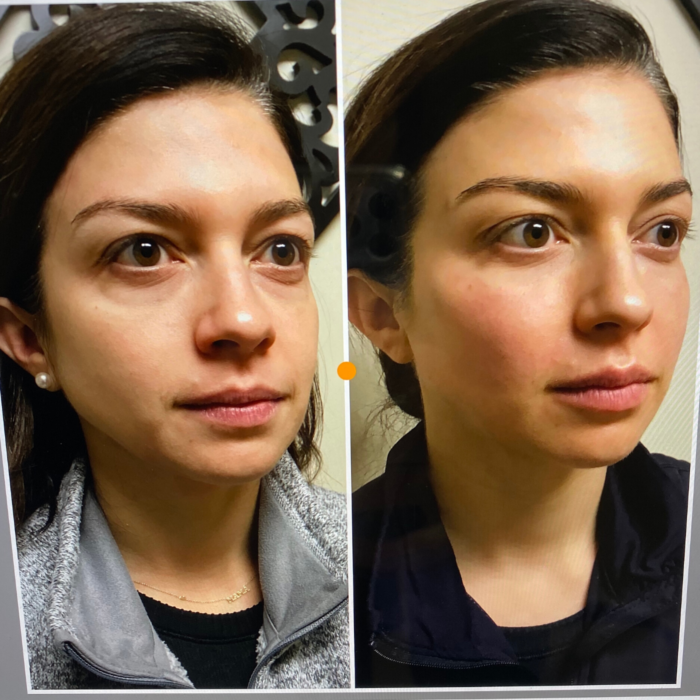 facial fillers | My Facial Fillers Experience by popular Michigan life and style blog, The HSS Feed: before and after image of a woman with facial fillers.