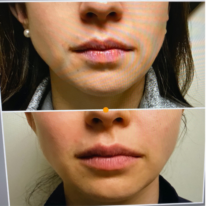 facial fillers lip filler before and after | My Facial Fillers Experience by popular Michigan life and style blog, The HSS Feed: before and after image of a woman with facial fillers.