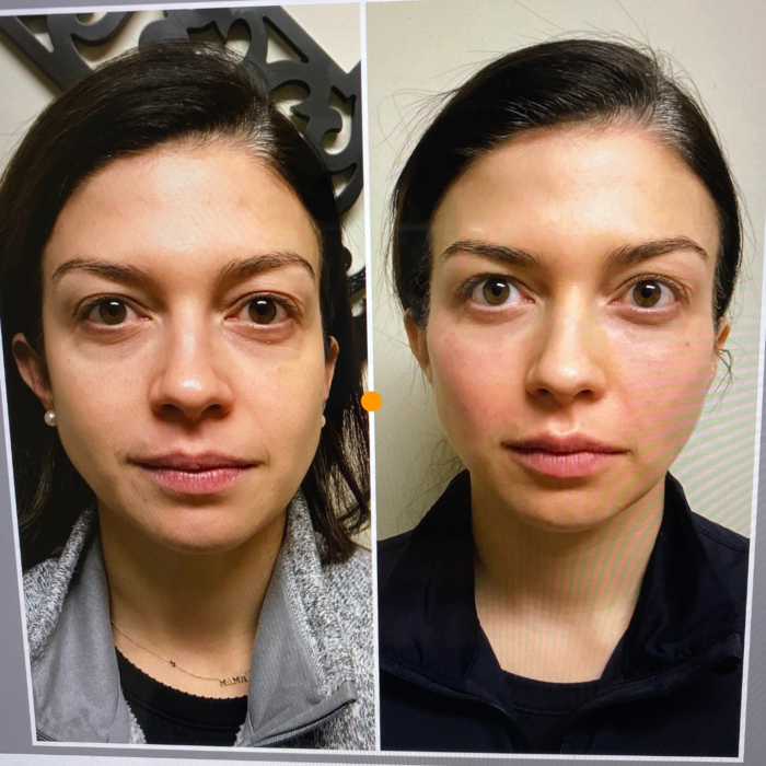 facial fillers check filler before and after | My Facial Fillers Experience by popular Michigan life and style blog, The HSS Feed: before and after image of a woman with facial fillers.